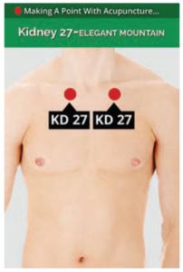 Kidney 27